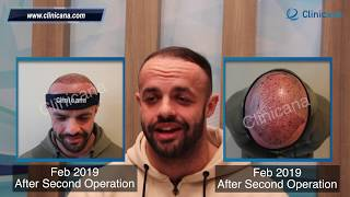 Hair Transplant Turkey | Dublin Ireland | Clinicana