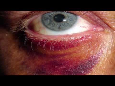 (Blunt Force Injuries: Bruise (Contusion))FSC