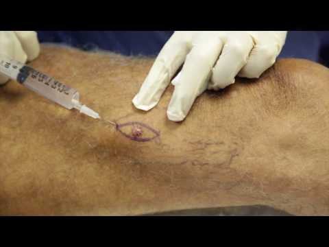 Skin Cancer Surgery - Basal Cell Carcinoma Excision on the Leg