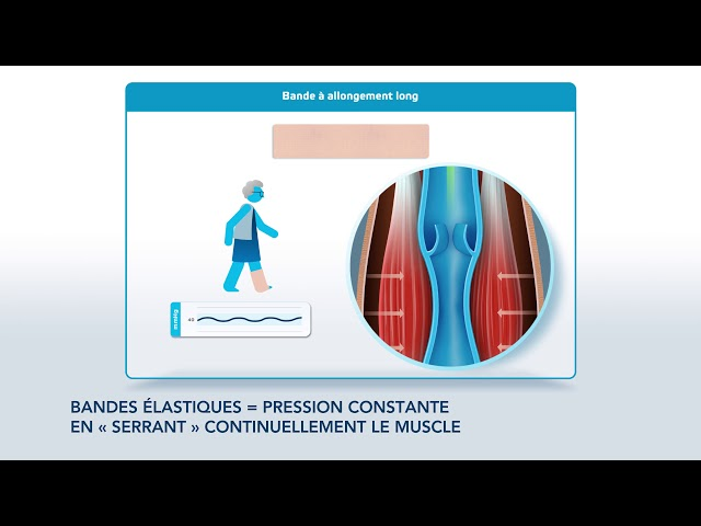 Comprendre la thérapie de compression pour ulcère veineux - Société Française de Phlébologie