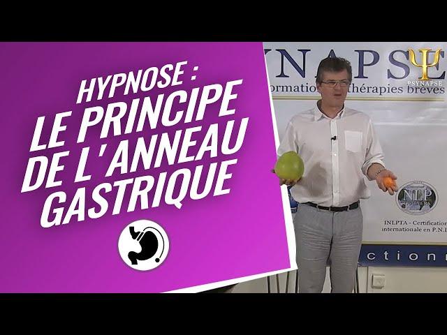 Formation Hypnose // Anneau Gastrique Hypnotique : Présentation par Psynapse.