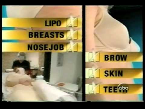 Extreme Makeover | Dr. Garth Fisher Performs A Breast Augmentation And Liposuction On Amy Romaines