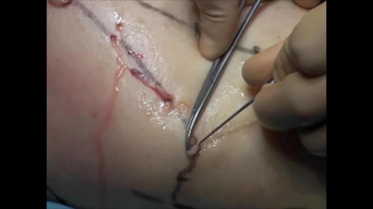 varicoșeză phlebectomie sau laser