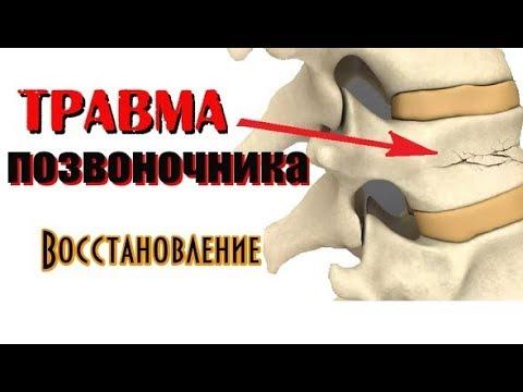 Травма ушиб позвоночника. Восстановление