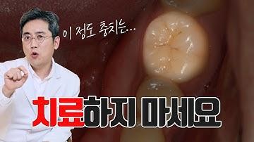 충치 치료때문에 고민이신 분들은 보세요!! 치과에서 바가지(?) 안 쓰는 법!! #충치치료 #초기충치 #신경치료