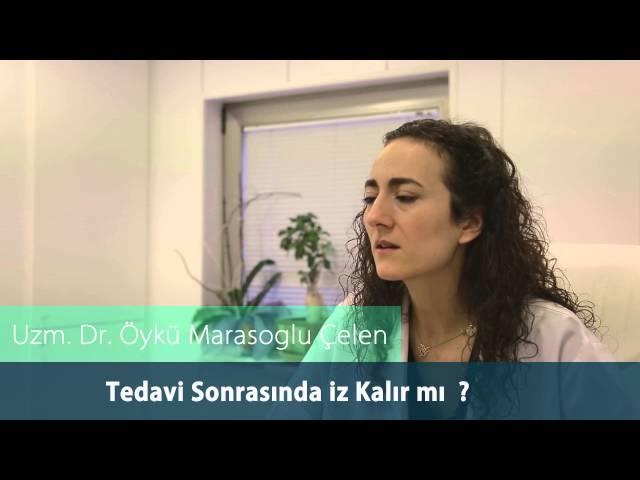 Dr. Öykü Maraşoğlu Çelen - Erişkin Aknesi / Erişkin Aknesinde İz Kalır mı ?