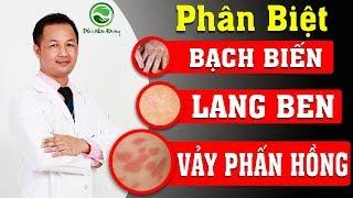 Cách phân biệt bệnh Lang ben , Bạch biến và Vảy phấn hồng