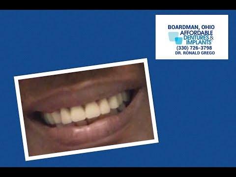 """Affordable Dentures should be for everybody, I'm leaving with a smile!"" Affordable Dentures- Dr. G"