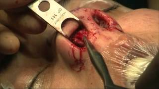 Reportage Chirurgie de rattrapage après rhinoplastie - Magasine de la santé France 5