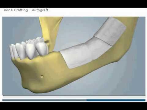 костный блок на нижней челюсти