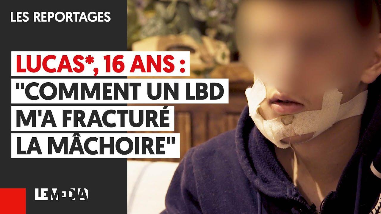 """LUCAS*, 16 ANS : """"COMMENT UN LBD M'A FRACTURÉ LA MÂCHOIRE"""""""
