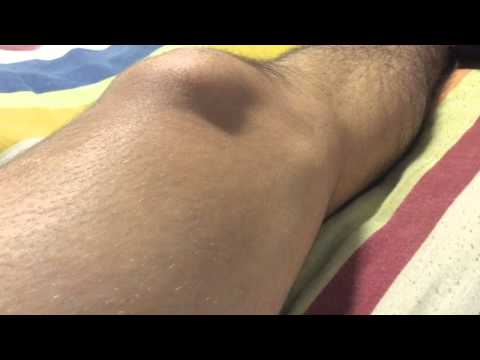 Major thigh fasciculation - Muscle twitching