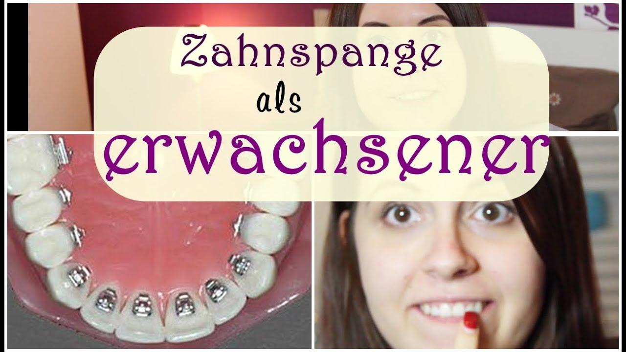 Zahnspange Bei Erwachsenen Lingualtechnik Kosten Jumarie Youtube