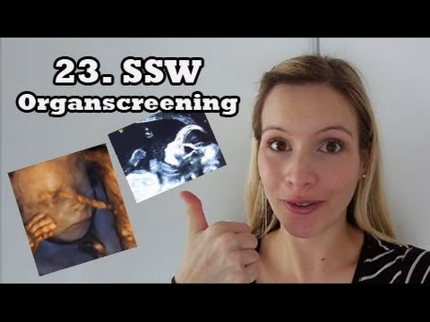 Schwanger - 23.SSW - Organ-Screening - Bauch & Baby Update I Schwangerschaft I MamaBirdie