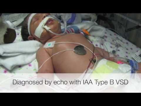 Interrupted Aortic Arch VSD, IAAVSD Neonatal Repair