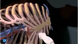 3D-пособие: Получение эхокардиографического изображения в парастернальной проекции по длинной оси
