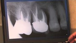 Classic Symptoms of a Root Fracture (#3)