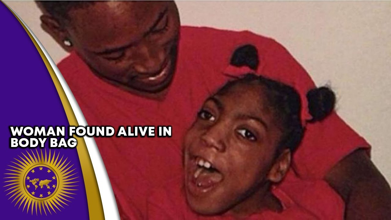 20 Yr Old Woman With Cerebral Palsy Found In Body Bag Alive After Being Declared Dead For 3 Hours