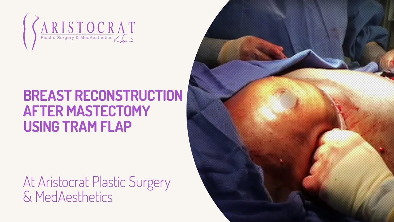 Breast Reconstruction After Mastectomy Using Tram Flap -4314