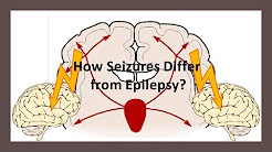 How Seizures Differ from Epilepsy?