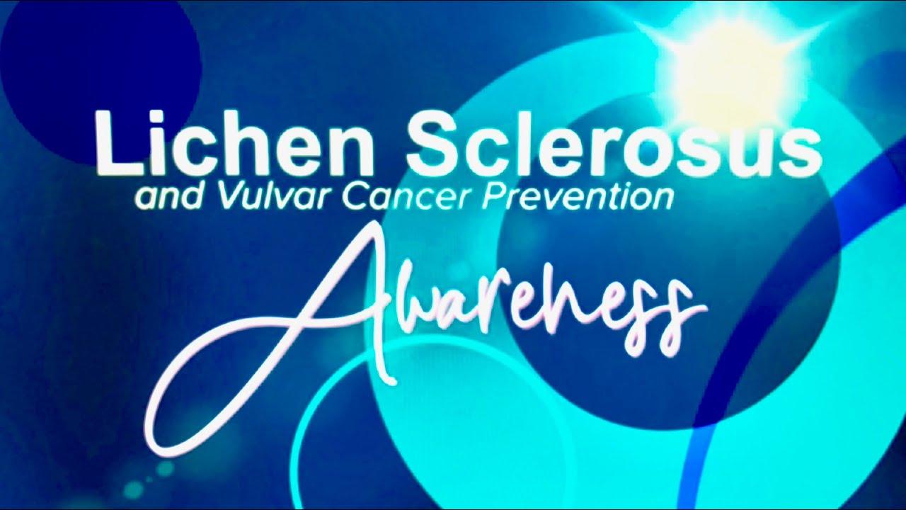 Lichen Sclerosus Awareness And Vulvar Cancer Prevention Youtube