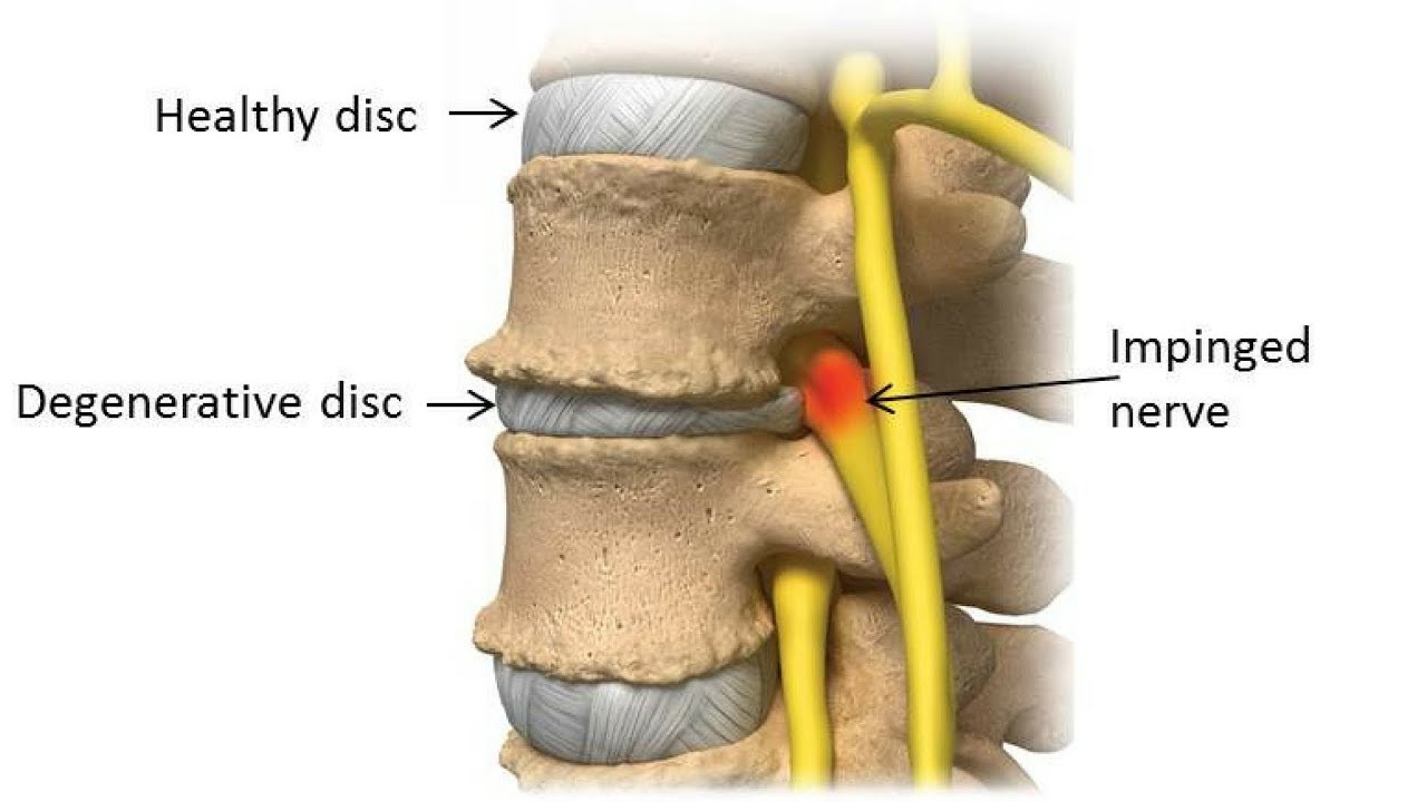 research on degenerative disc disease Degenerative disc disease is part of the natural aging process of the human spine and agency for healthcare research and ncbi  literature  pubmed health.