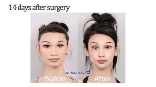 American girl experiencing plastic surgery in Korea and the result is unbelievable!