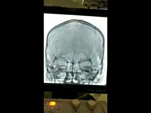 Cerebral Angiography Procedure