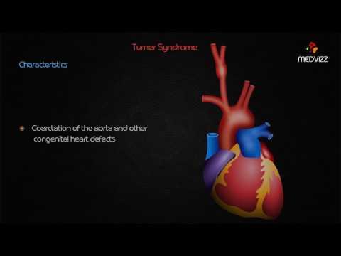 Turner syndrome (gonadal dysgenesis) - Usmle step 1 lecture