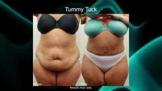 Dr. Darm, Tummy Tuck Before and Afters Slideshow 2016