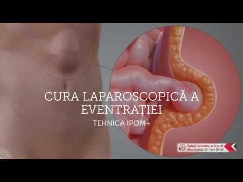 Cura laparoscopica a eventrartiei