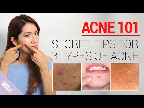Acne 101: How to Take Care of Acne At Home (Types & Treatment) | Wishtrend
