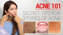 hqdefault - How To Take Care Of Acne Face