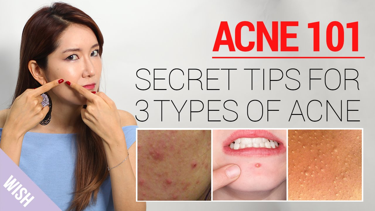 Acne 10: How to Take Care of Acne At Home (Types & Treatment)  Wishtrend