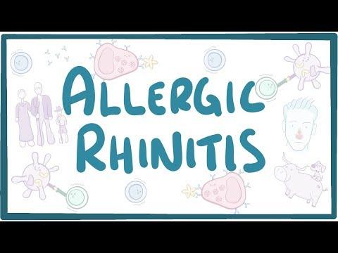 Allergic Rhinitis – causes, symptoms, diagnosis, treatment, pathology