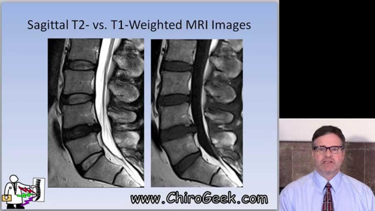 how to read lumbar spine mri