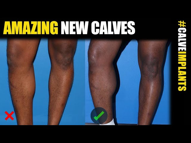 Calf Implants for Men in NYC, Chicago and Los Angeles