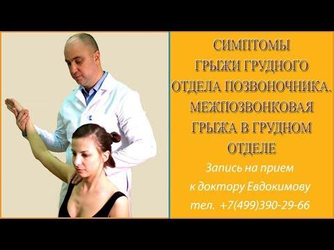 Симптомы грыжи грудного отдела позвоночника. Межпозвоночная грыжа в грудном отделе
