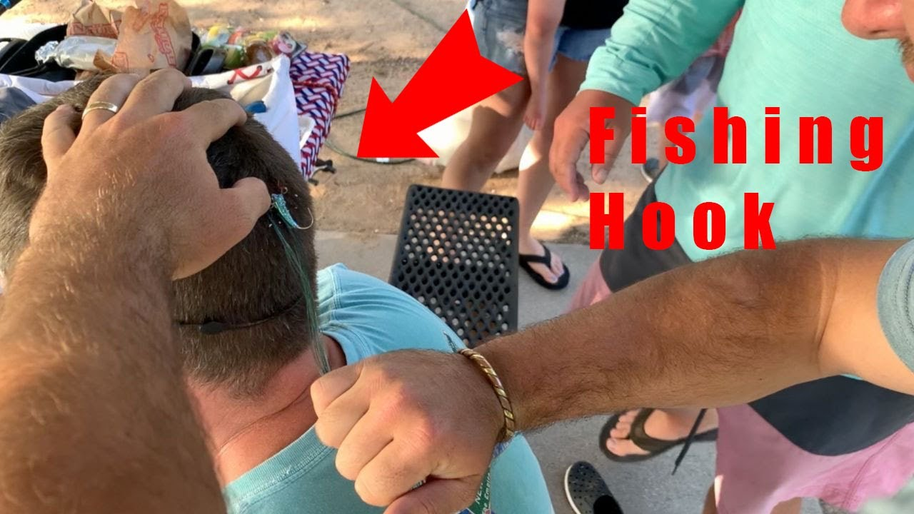 Fishing HOOK Removal! The Braid Technique {Easy And Painless}