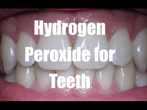Image result for tooth whitening peroxide