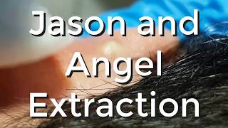 Jason and Angel Extraction