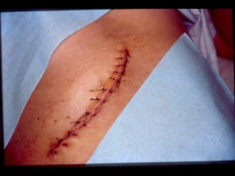 Heridas y curaciones pdf