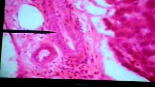 Histo of Liver, Pancreas, Gall Bladder & Bile Duct (Part 2)