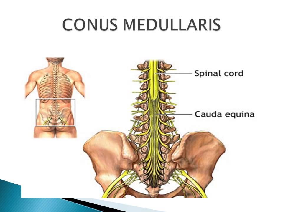 Moderno Conus Medullaris Anatomy Embellecimiento - Anatomía de Las ...