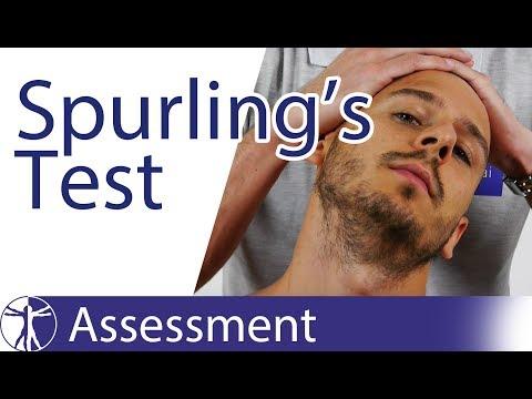 Spurling's Test | Cervical Radicular Syndrome
