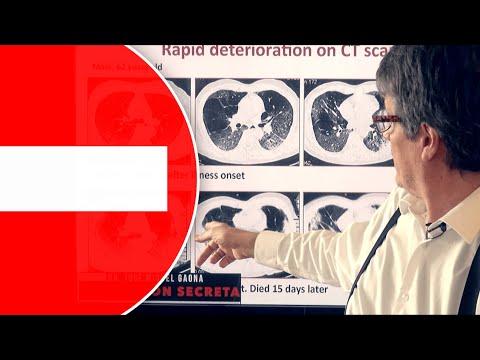alerta:-las-secuelas-del-coronavirus-efectos-secundarios