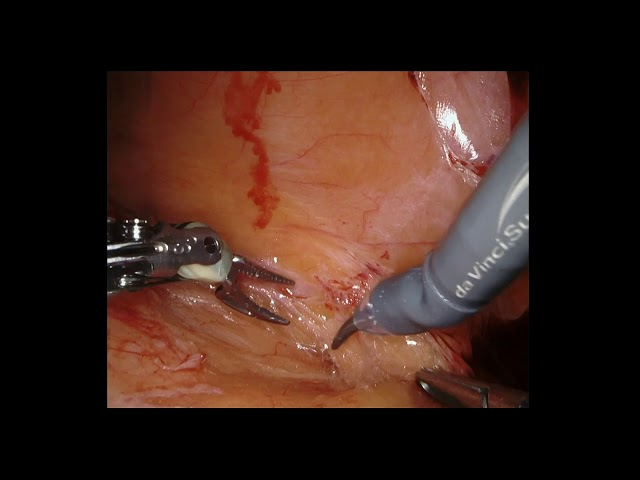 Richard Gaston - Robotic Anterior Pelvic Resection for Recurrent Rectal ADK