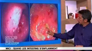 MICI - l'inflammation chronique des intestins.