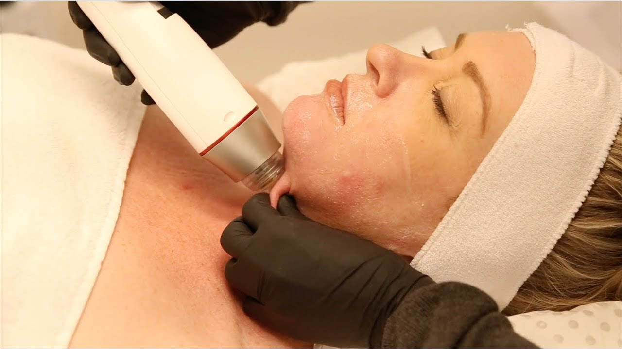 Infini RF for Skin Tightening, Acne Scars & Excessive Sweating