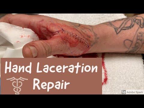 Hand Laceration Repair